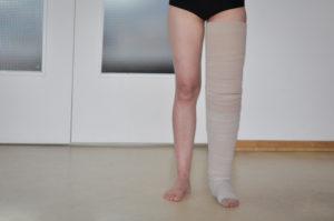 Beinlymphödem
